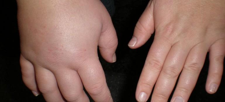 Отеки на похмелье: причины возникновения и методы лечения